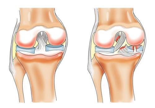 metode fizioterapeutice pentru tratamentul artrozei genunchiului biciclete pentru tratamentul artrozei genunchiului
