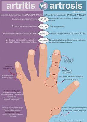 Tratamentul artrozei la Baden Baden. Cum se manifestă artroza articuatiei degetului mare?