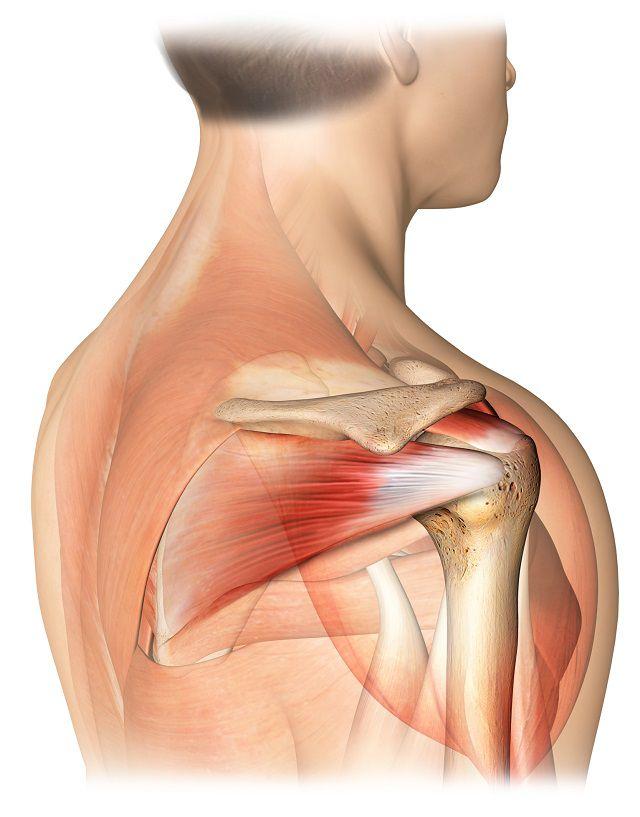 Deteriorarea manșetei rotative a articulației umărului drept - Durerea de Umăr