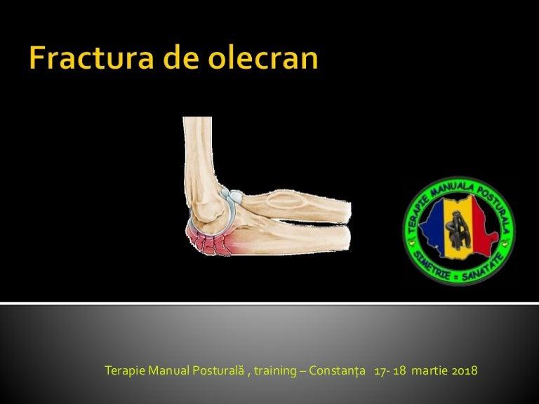 Recuperare cot - Dr. Gavrilă - chirurg ortoped