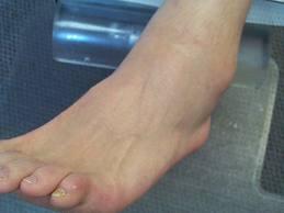 refacerea ligamentelor gleznei după accidentare)