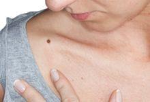 dureri articulare și erupții alergice