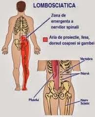 tratamentul nervilor de șold)