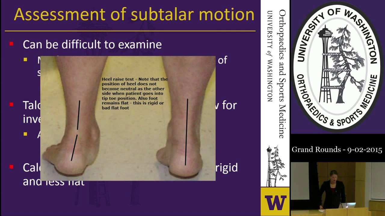 Ramă-calcaneo-naviculară a bolii. Afectiunile piciorului si gleznei