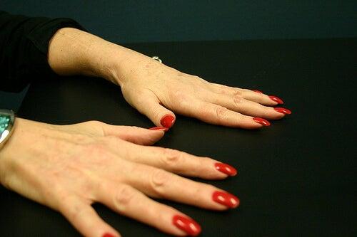 ce bulionuri pentru a trata artrita reumatoidă)