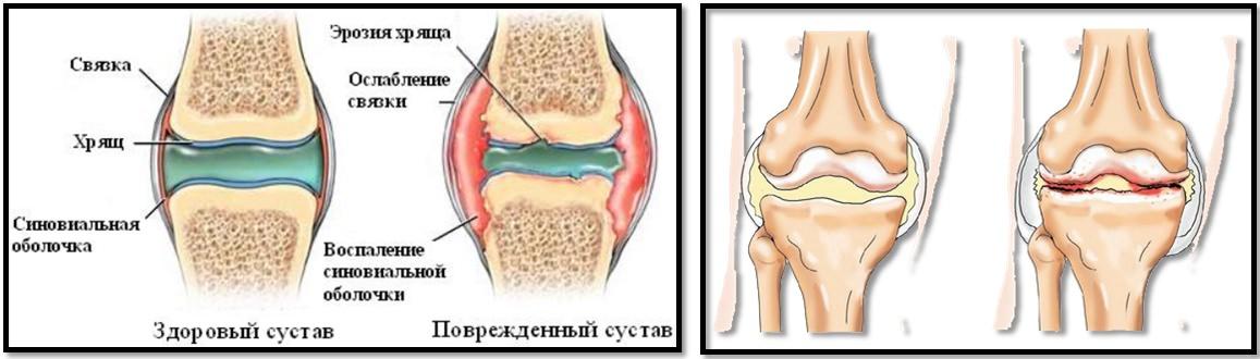Cum să învingi artroza tuturor articulațiilor