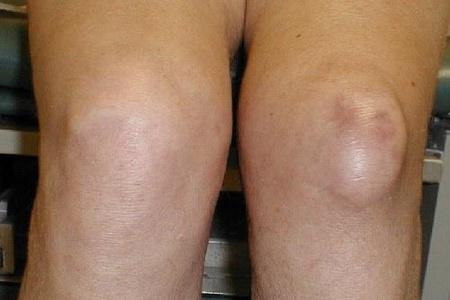 cum se tratează edemul articulației genunchiului)