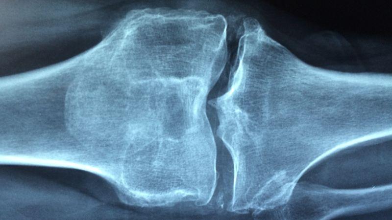 boala artrozei și modul de tratare a acesteia)