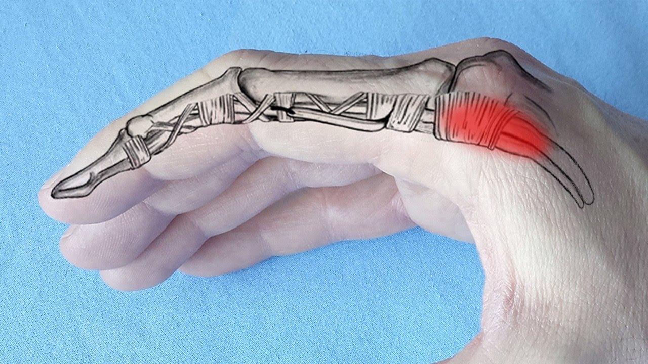 artroza articulației degetului mic)
