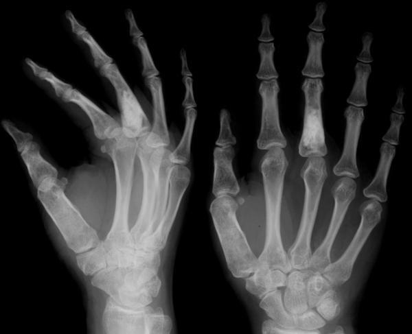 articulație dureroasă a falangelui degetului mare)