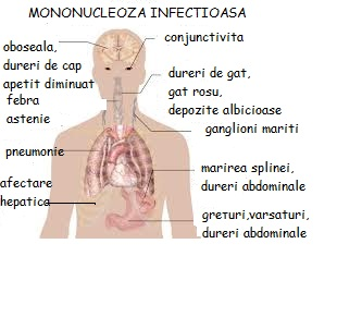 mononucleoza durerilor articulare)