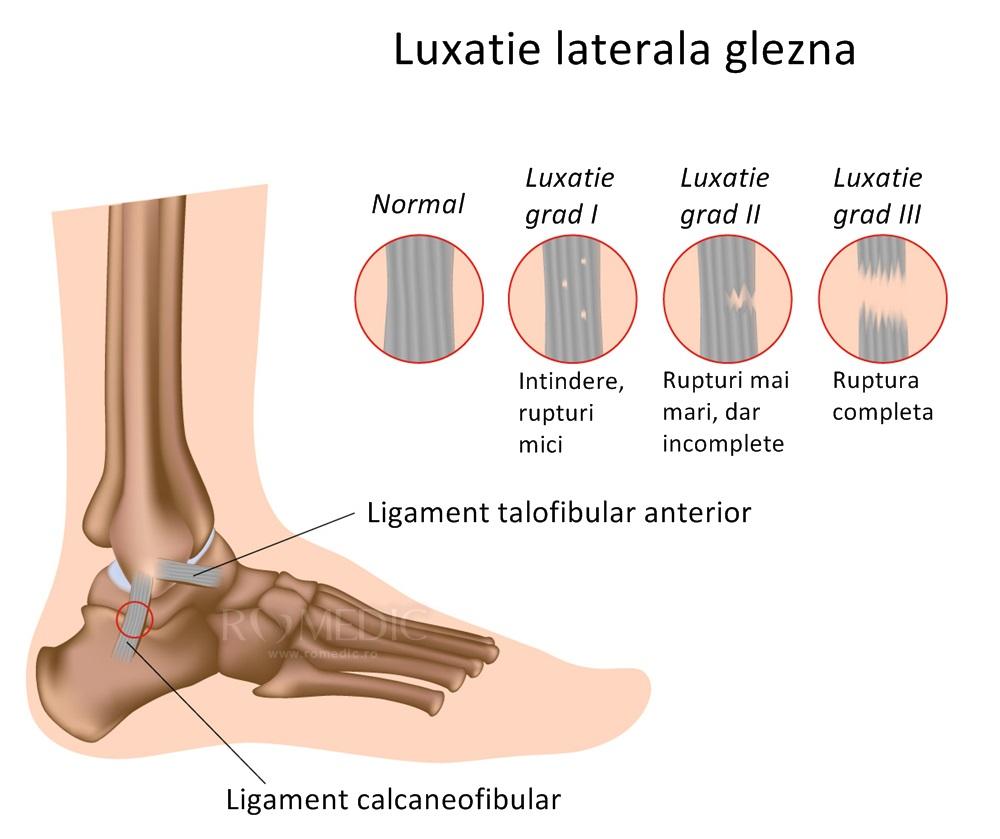 luxația durerii la nivelul picioarelor în articulație)