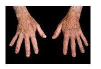 dureri articulare lupus eritematos sistemic