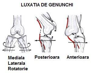 deteriorarea articulației genunchiului și luxația piciorului