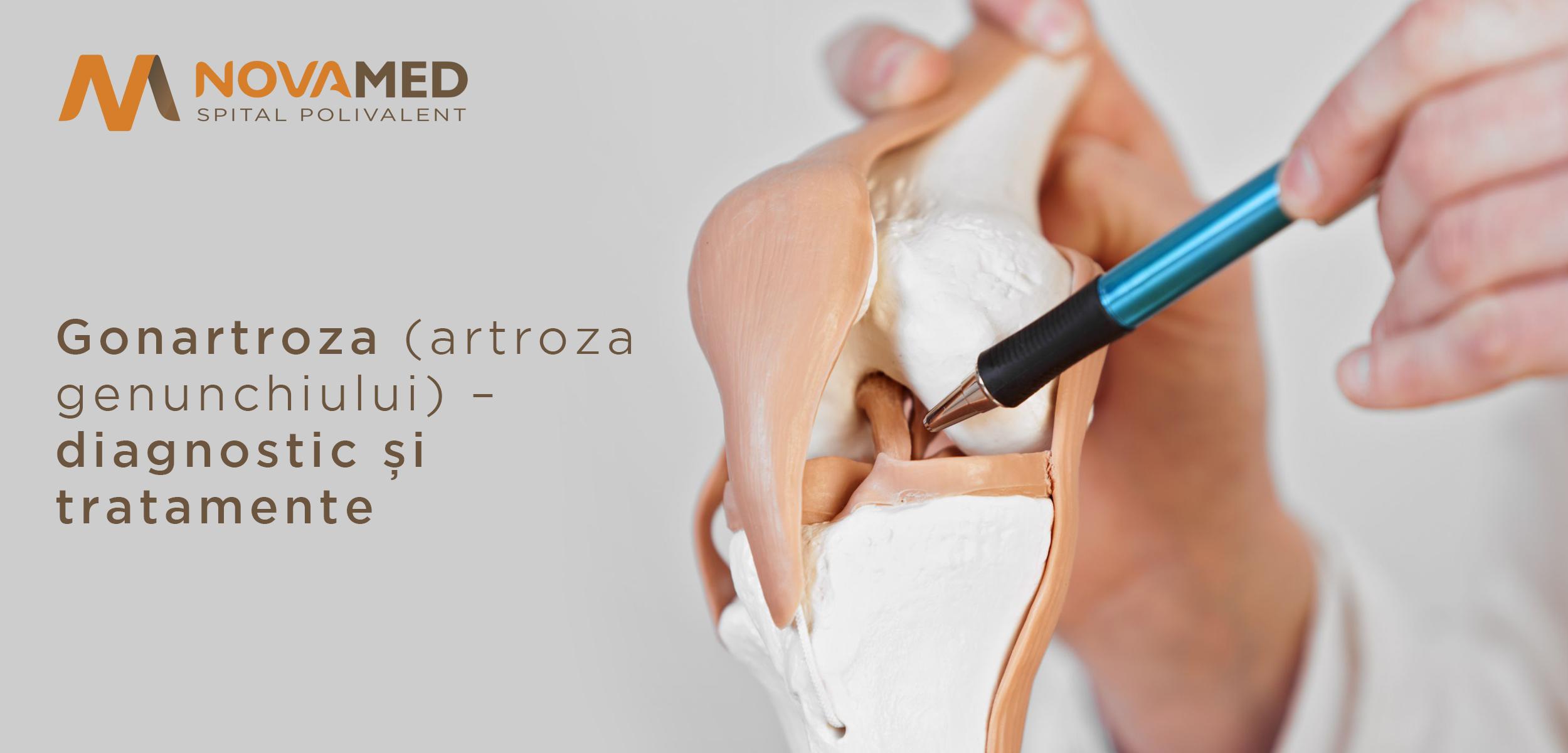 tratament și diagnostic de artroză