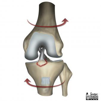 consecința unei leziuni la genunchi