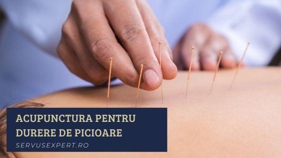 Acupunctura în tratamentul migrenelor și al durerilor de cap - Acupunctor
