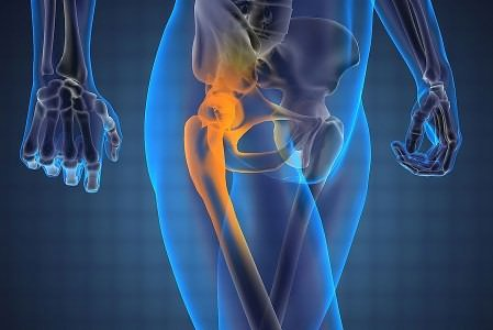 bursită purulentă a istoricului medical articulației cotului)