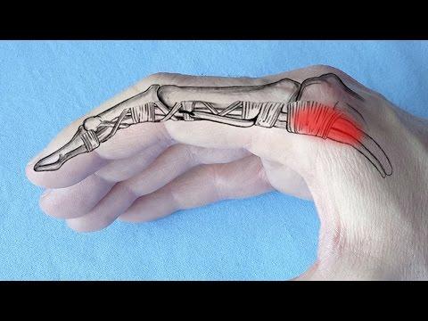 tratamentul artrozei posttraumatice a degetului