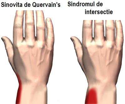 tratamentul sinovitei la încheietura mâinii)