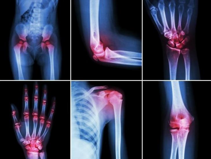 Tratament comun cu alcool de camfor. Tratamentul edemului genunchiului