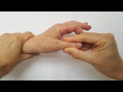 unguent tratamentul artrozei degetului)