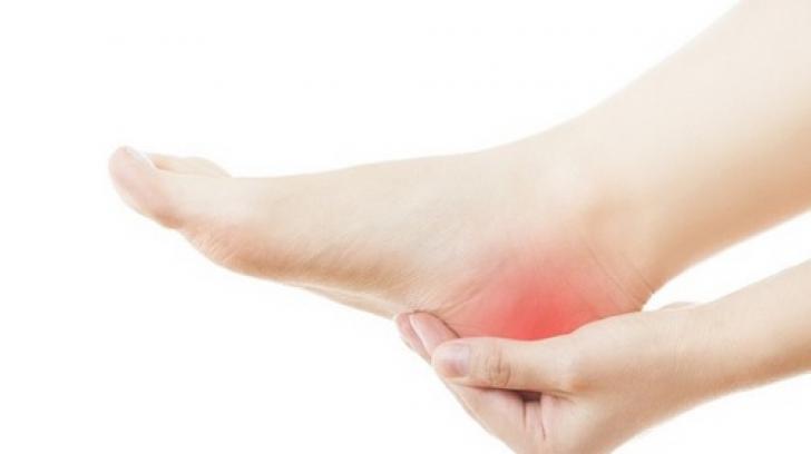 Durerea de călcâi - CSID: Ce se întâmplă Doctore?