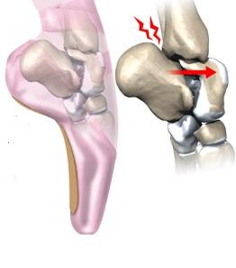 Sindromul de tunel tarsian Tratamentul sindromului gleznei