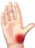 exacerbarea artritei degetului mare)