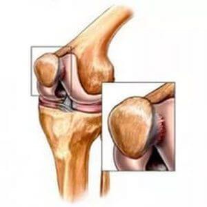 articulație dureroasă pe piciorul din apropierea degetului mijlociu