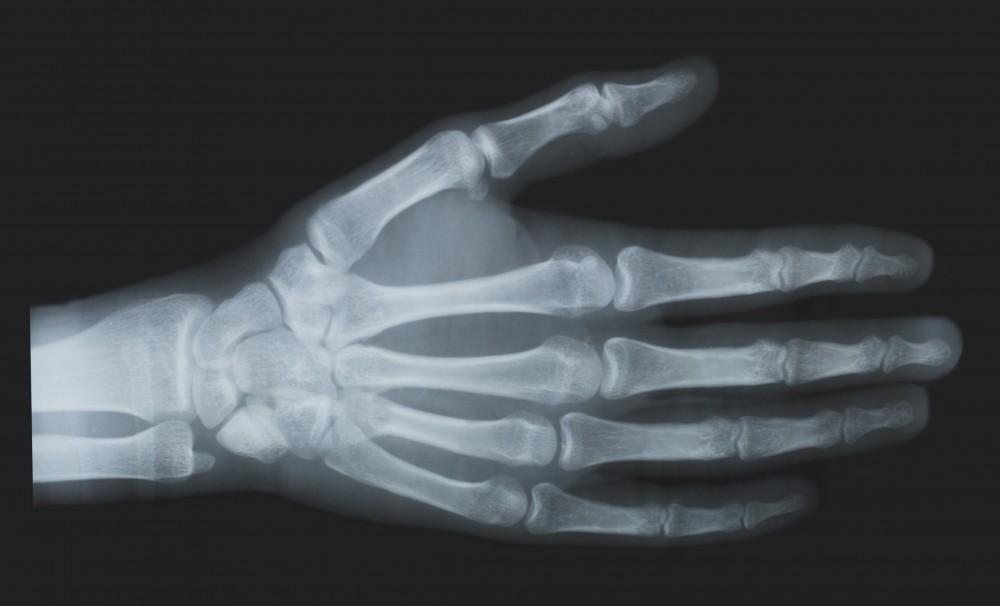 îngrijire medicală pentru leziuni ale oaselor și articulațiilor)