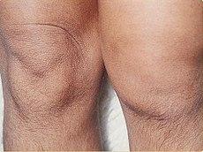 artrita seronegativă a genunchiului