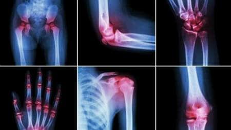 semne radiologice ale bolilor osoase și articulare