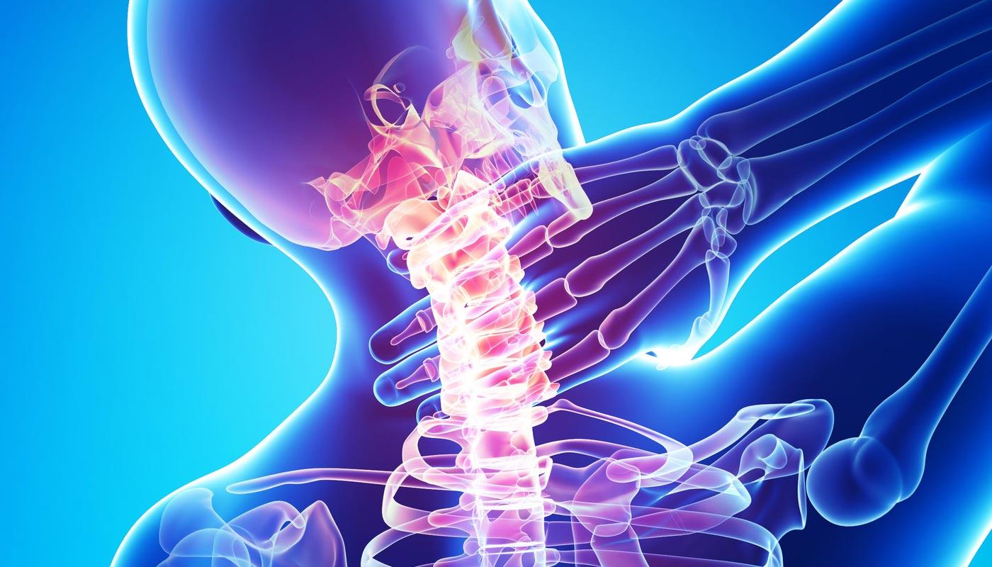 remediu pentru osteochondroza coloanei vertebrale cervicale)