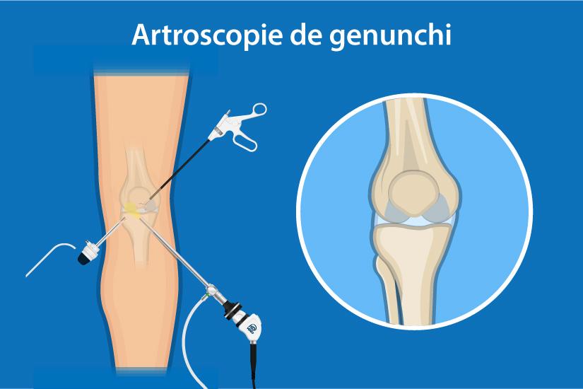 cât timp este tratată hemartroza genunchiului