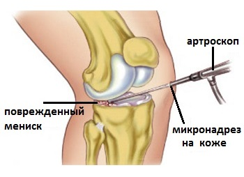 deteriorarea meniscului genunchiului ce trebuie făcut)