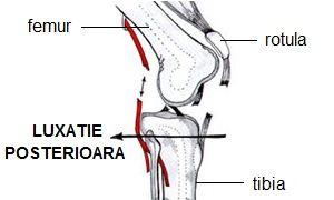 luxația tratamentului articulației genunchiului