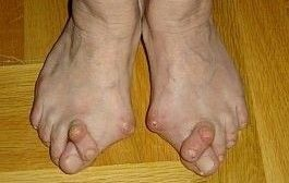 artrita reumatoidă a gleznei)