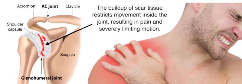 diabet și dureri articulare