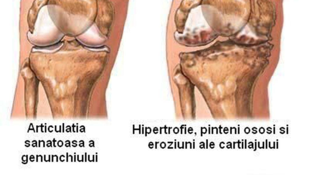 ce înseamnă artrita genunchiului)