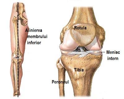 ligamentul lateral intern al inflamației articulației genunchiului