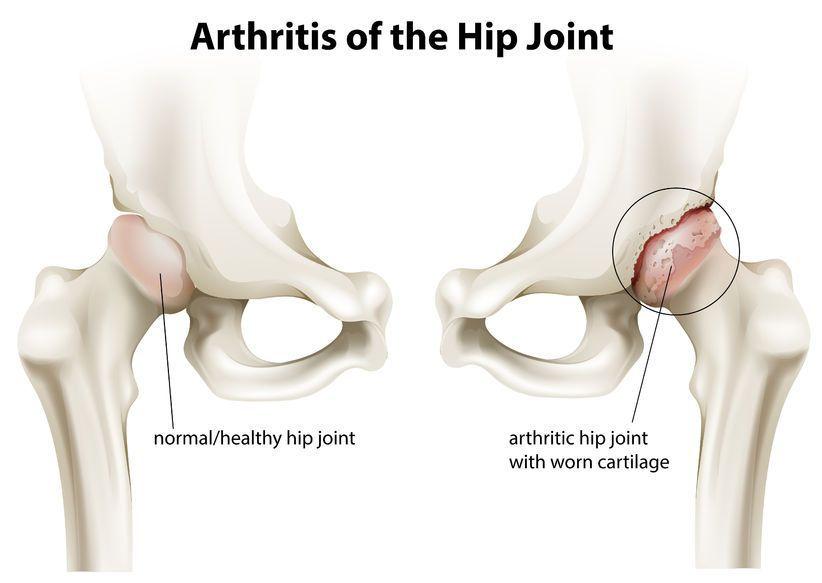 exacerbarea artrozei articulației șoldului