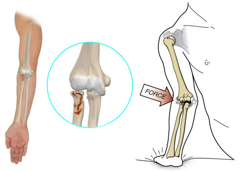 recuperare după fractura articulației cotului)