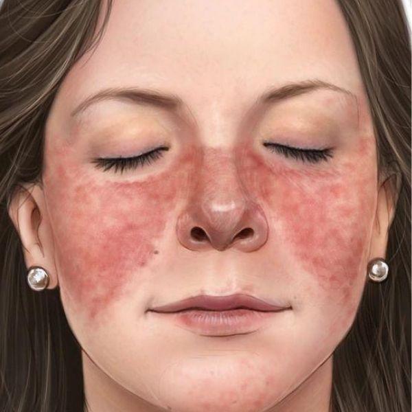 dureri articulare lupus eritematos sistemic)