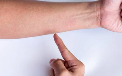 ce beau cu inflamația articulară dureri articulare lângă degetul mic