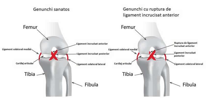 recuperare după coaserea ligamentelor la articulația genunchiului)
