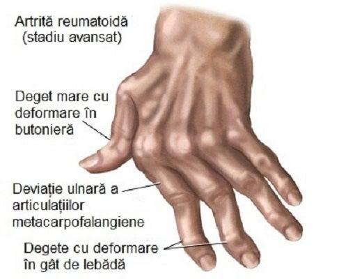 articulațiile degetului mare al mâinii drepte)