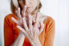 recenzii ale tratamentului cu artrita reumatoidă