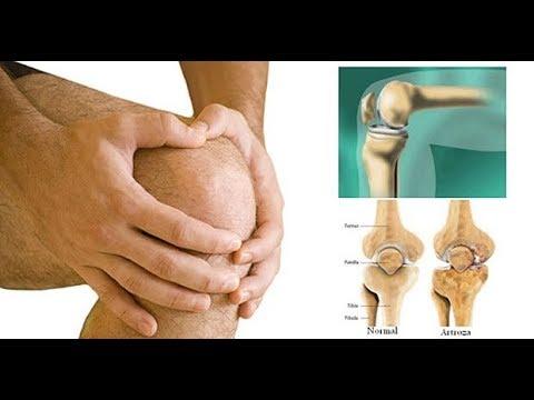 artrita piciorului inferior al articulației