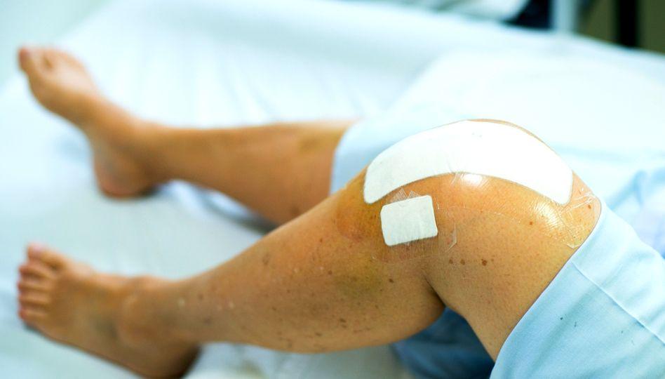 Umflarea șoldului și a genunchiului - Durere și umflare în articulația șoldului